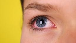 9 серьезных симптомов глазных заболеваний, на которые нужно обратить внимание